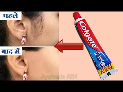 in-2-minutes,-remove-unwanted-hair-permanently-||-no-shave-||-no-wax-||-ayurveda-atm-||