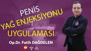 Penis Yağ Enjeksiyonu Uygulaması  | Op.Dr.Fatih Dağdelen