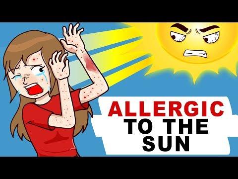 Free Download I Am Allergic To The Sun Mp3 dan Mp4