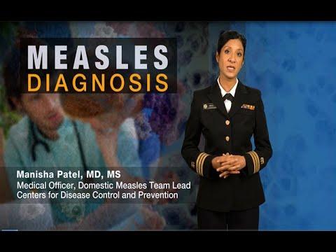 Measles Diagnosis
