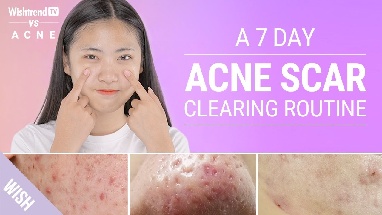 Acne Scars How To Prevent Quickly Remove Various Types Wishtrend Tv Vs Acne Youtube