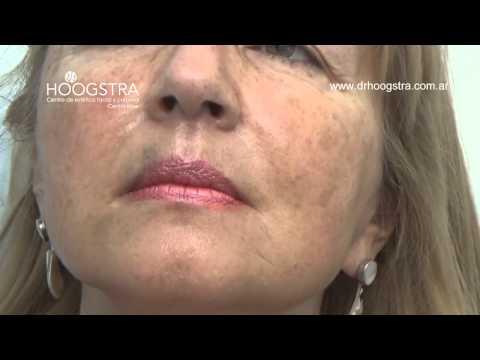 Radiofrecuencia y rellenos en cara y cuello (14100)