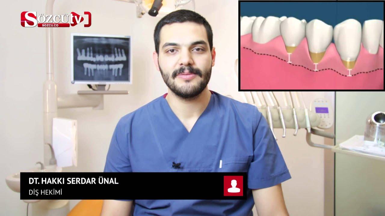 Diş Eti Çekilmesi Nasıl Durdurulur: Diş Eti Çekilmesine Bitkisel Çözüm