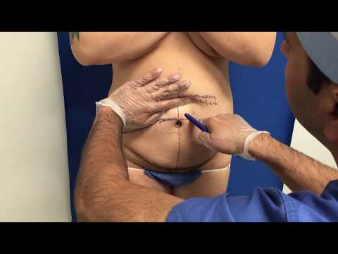 Tummy Tuck Pre-Operative Markings with Dr. Singh