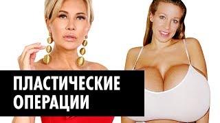Самая популярная пластика мира: ринопластика, увеличение груди, подтяжка лица | Записки Охотницы