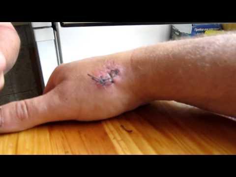 Заживление после обрезания - Форум - Консультация уролога