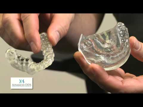 Garden City Dentist is using 3D Impressions