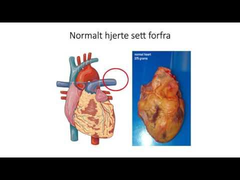 Sirkulasjonssystemet: Hjertets anatomi