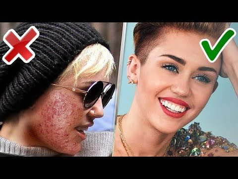10 Famosas sin maquillaje
