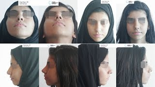 Rhinoplasty Before After - 10 Days Result - Ozge Ergun MD, Aesthetic Plastic Surgeon