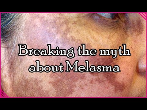 How to Cure Melasma & Other Dark Spots - Dr Meera James
