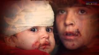 Слезы войны (Дети войны), Донбасс, Сирия, Израиль.