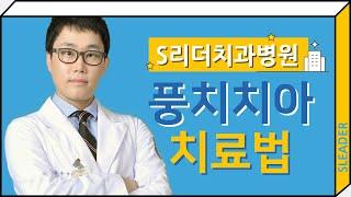 치아풍치치료, 풍치치료…