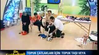Dr. Feridun Kunak Show 25 Temmuz B7(Topuk Çatlakları İçin Yapılması Gerekenler)
