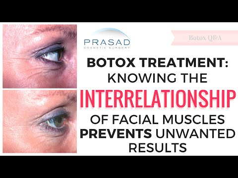Botox Treatment - How Knowing the Interrelationship of Facial Muscles Helps Prevent Unwanted Results