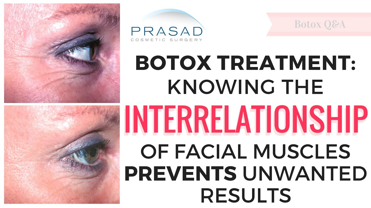 Botox Treatment How Knowing The Interrelationship Of Facial