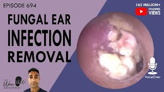 694 - Fungal Ear Infection Removal