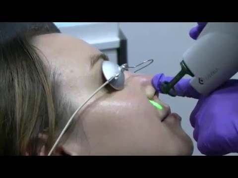 VBeam Laser Skin Treatment | Moradi MD