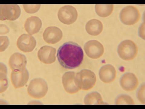Blood 3, Blood cells.