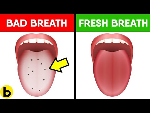 12 Home Remedies To Cure Bad Breath Fast