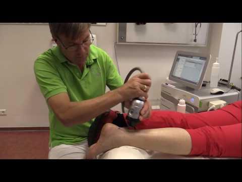 Dr  Bätje, Hannover   ESWT bei chronischer Achillodynie