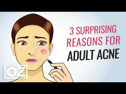 3 Surprising Reasons for Adult Acne