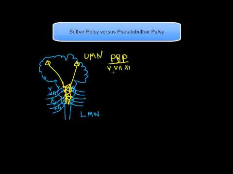 Bulbar and pseudobulbar palsy • LITFL • CCC Differential