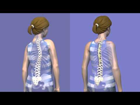 What is Scoliosis surgery?