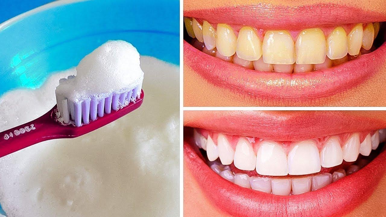cómo blanquear mis dientes remedios caseros