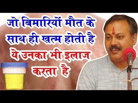 Rajiv Dixit - जिस बीमारी में एम्स के डॉक्टर के भी पसीने छुट जाए, ये उसे 2 महीने में ठीक कर देगा