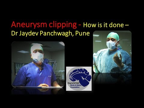 Aneurysm clipping- How is it done?  Dr Jaydev Panchwagh, Pune