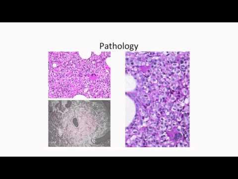 Molecular Profiling of Myelodysplastic Syndromes