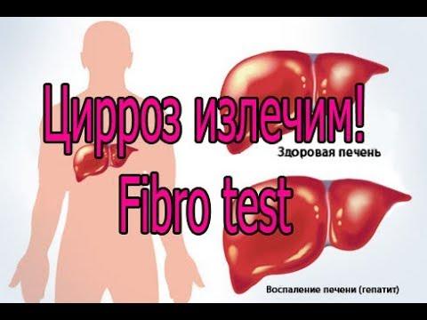 Цирроз излечим! Fibro test.