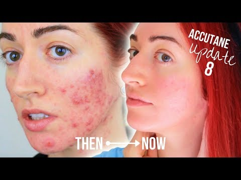 My Accutane Update (8 Months!) With Before & After | Jess Bunty
