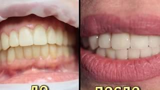 Протезирование зубов керамическими винирами без обработки. КЛИНИКА ФАБЕРЖЕ