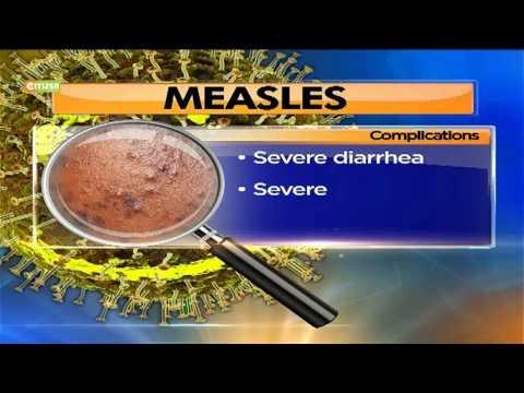 Ministry of Health kicks off a measles-rubella, tetanus vaccination drive