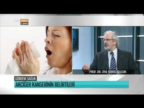 Akciğer Kanserinin Belirtileri - Prof. Dr. Ziya Toros Selçuk Anlatıyor - Gündem Sağlık - TRT Avaz