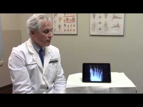 Hammer Toe Deformity: Causes & Treatment
