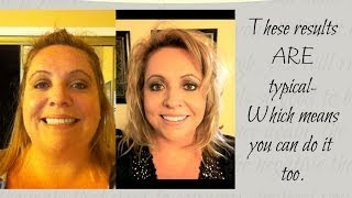 65lb Weight Loss with Prescription hCG drops - Episode 4: hCG Diet Interviews