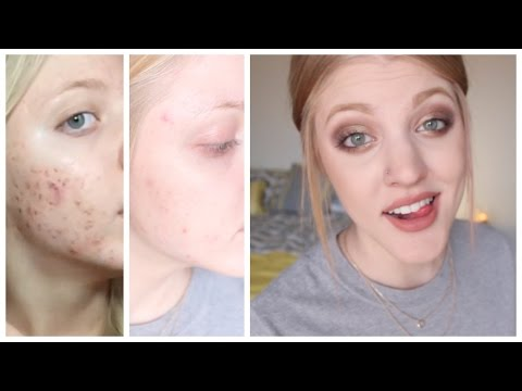 How I Maintain Clear Skin | Skin Care Routine For Acne Prone Skin!