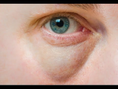 How to Cure Puffy Eyes - Under Eye Bags Home Remedies