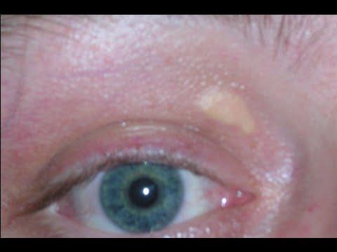 hqdefault - White Pimple On Eyelid Cholesterol