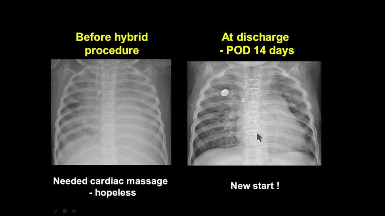 Hybrid procedure in pulmonary vein stenosis - YouTube