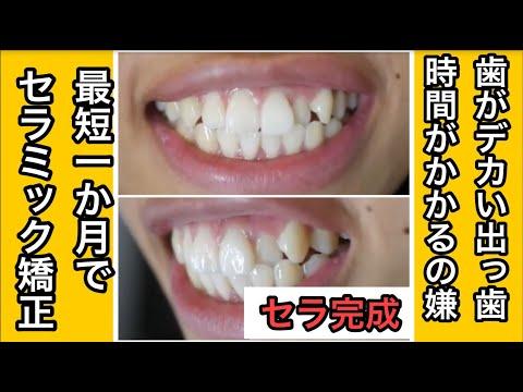 小さい頃から前歯が大きく歯並びが上下ガタガタだった