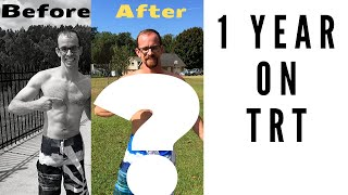 One Year On TRT (Testosterone Replacement Therapy)