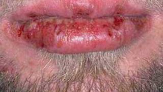 Chlamydia Bacterial Infection Treatment