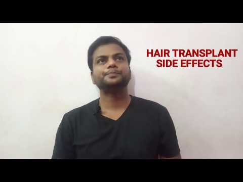 hair-transplant-side-effects-|-hair-transplant-side-effects