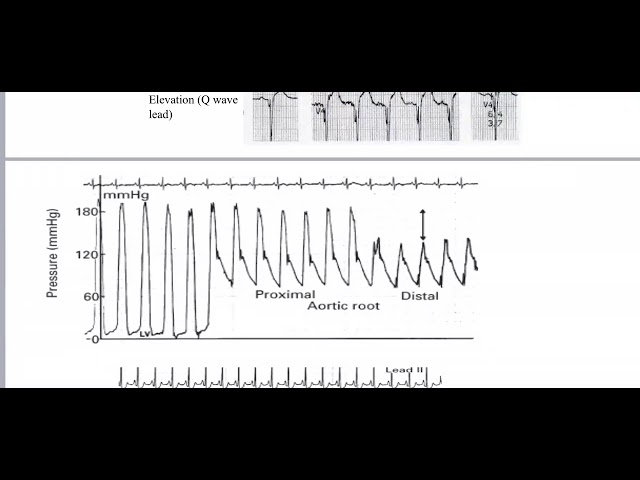 Bits and peices of cardiac data  Part 1