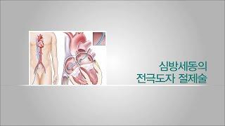 심방세동의 전극도자 절제술
