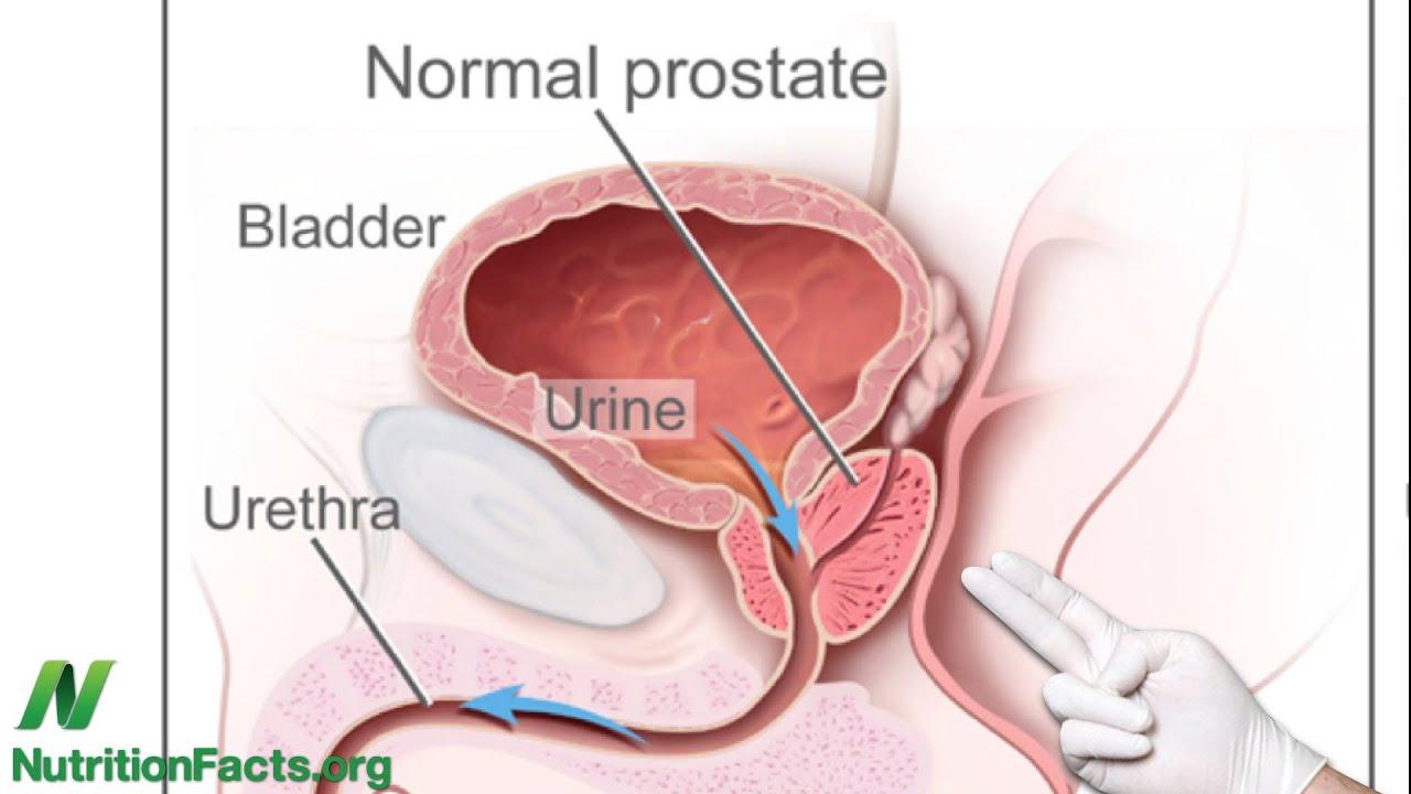 Mistress Gives Prostate Massge - Porn Video Tube